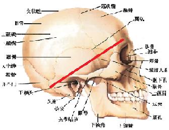 颅底肿瘤1