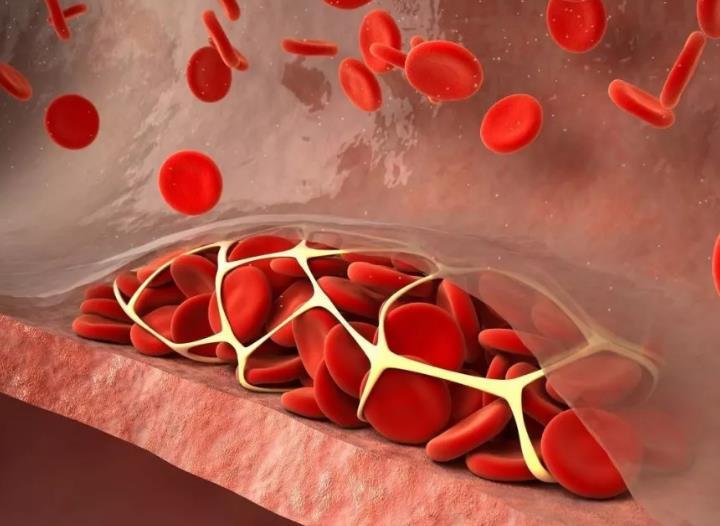 自行监测脑血栓六大前兆