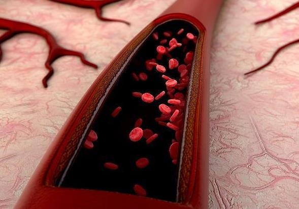中老年人一定要警惕血管疾病