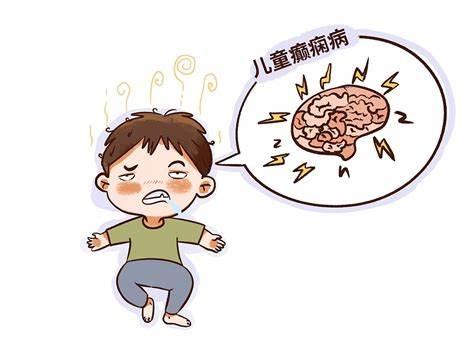 青少年癫痫的治疗