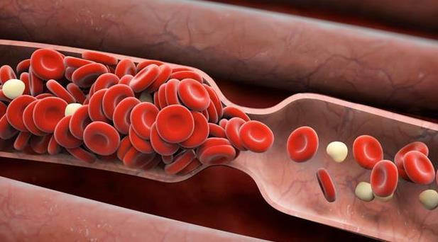 血栓性疾病的常见问题