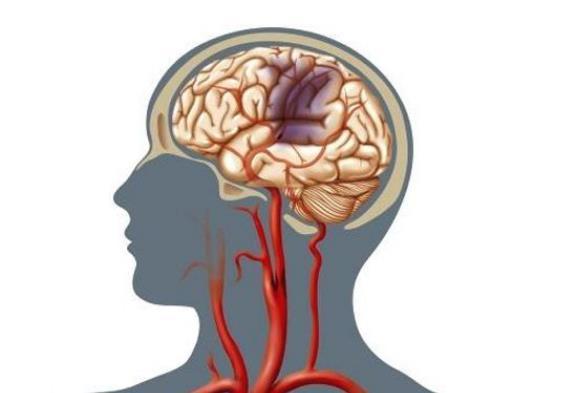 识别脑血栓早期症状 尽量减少残疾发生