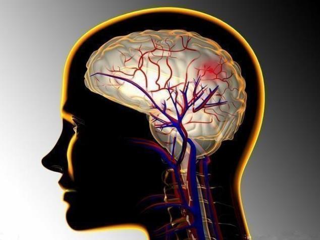 脑血栓患者如何饮食?